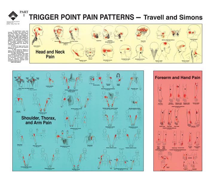 Travell and Simons Triggerpunktplansjer, 2stk