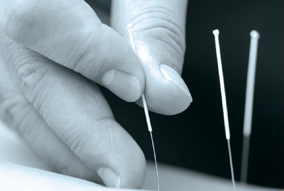 Akupunktur / HEGU